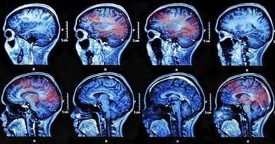 Mental health disorders common following mild head injury