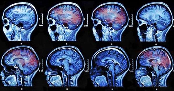 concussions-image